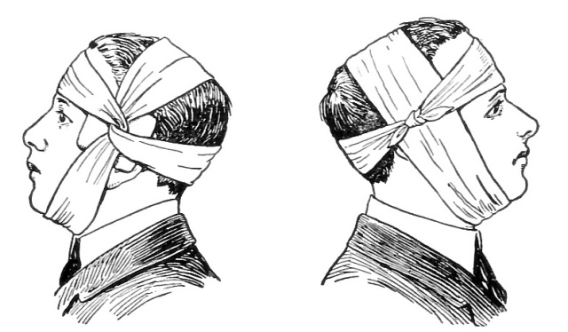 13171-illustration-of-ear-and-eye-bandages-or